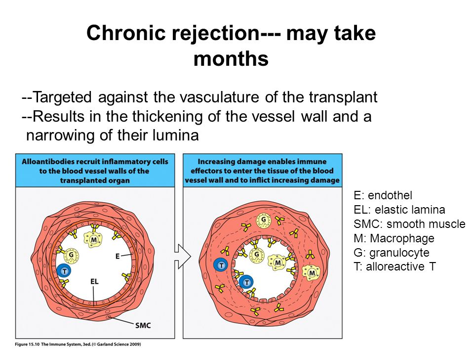 Chronic rejection--- may take months