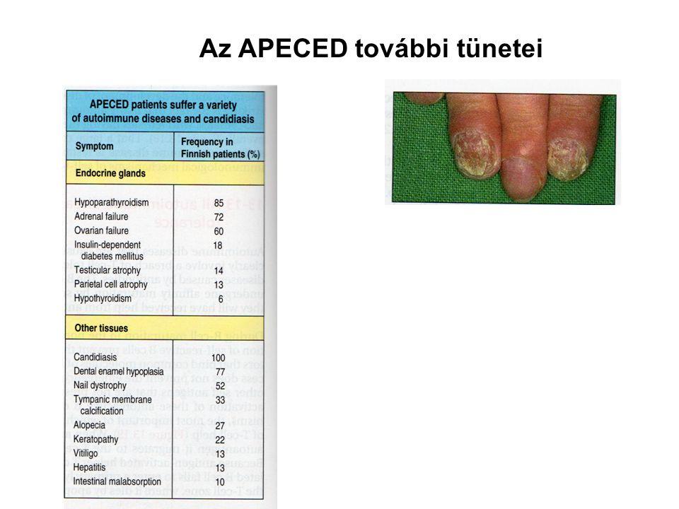 Az APECED további tünetei