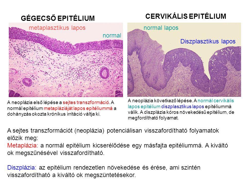 CERVIKÁLIS EPITÉLIUM GÉGECSŐ EPITÉLIUM metaplasztikus lapos