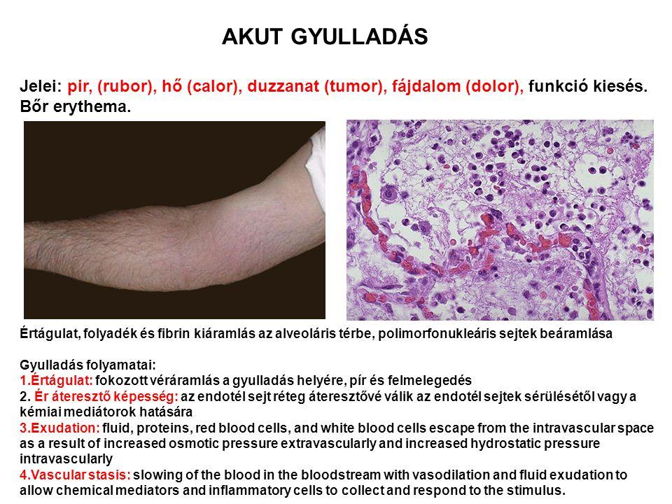 AKUT GYULLADÁS Jelei: pir, (rubor), hő (calor), duzzanat (tumor), fájdalom (dolor), funkció kiesés. Bőr erythema.