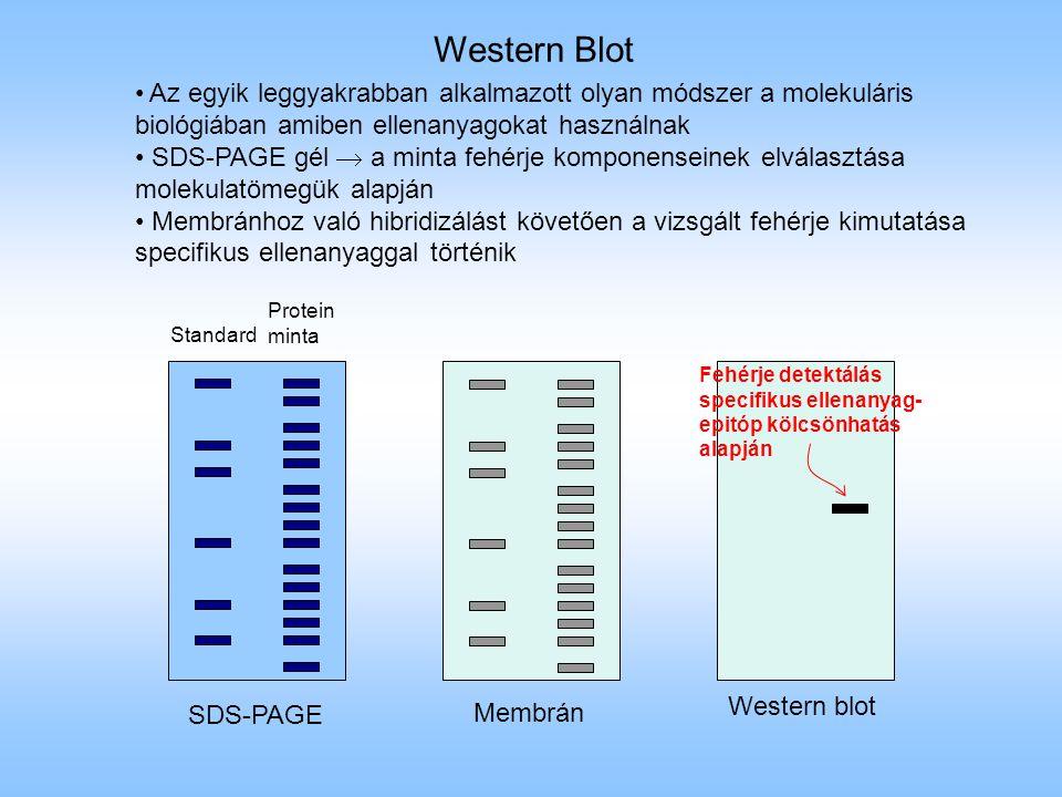 Western Blot Az egyik leggyakrabban alkalmazott olyan módszer a molekuláris biológiában amiben ellenanyagokat használnak.