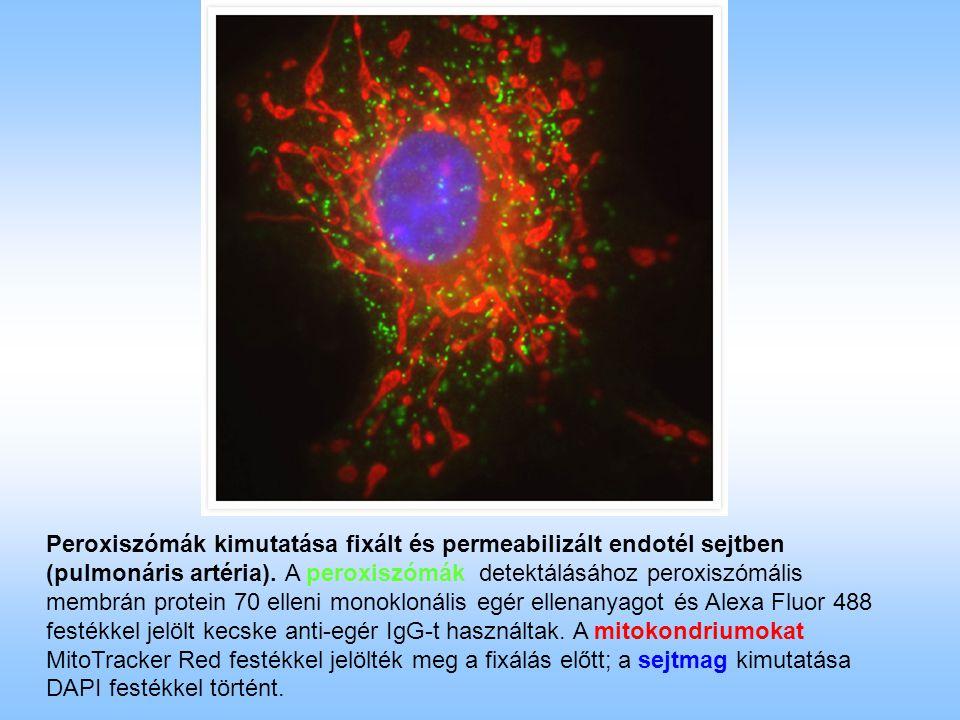 Peroxiszómák kimutatása fixált és permeabilizált endotél sejtben