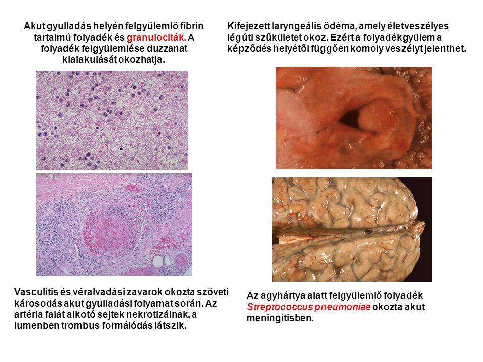 Akut gyulladás helyén felgyülemlő fibrin tartalmú folyadék és granulociták. A folyadék felgyülemlése duzzanat kialakulását okozhatja.