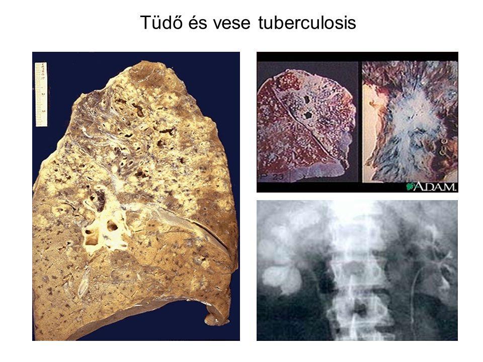 Tüdő és vese tuberculosis