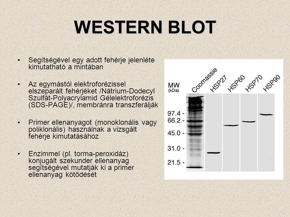 WESTERN BLOT Segítségével egy adott fehérje jelenléte kimutatható a mintában.