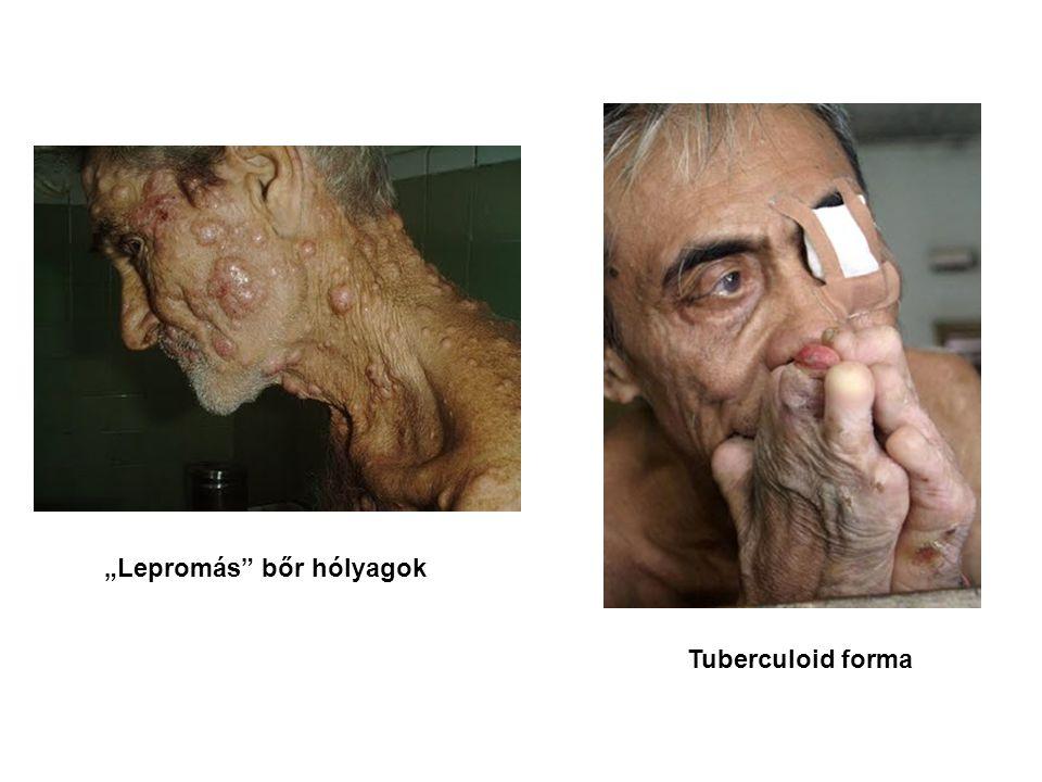 """Lepromás bőr hólyagok"