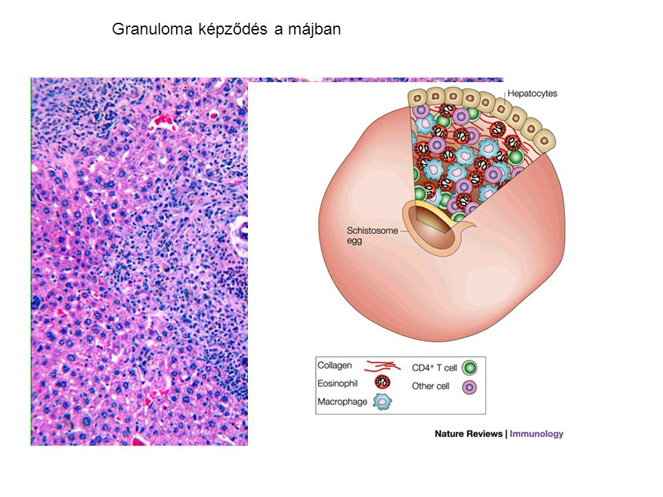 Granuloma képződés a májban