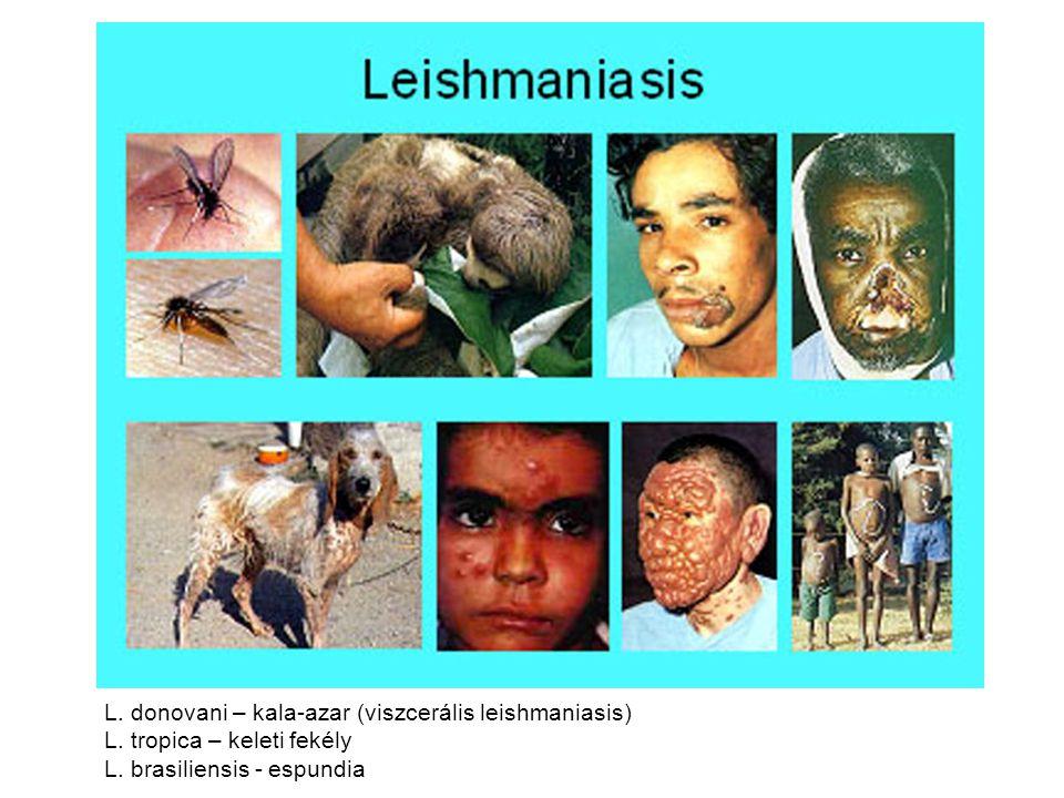 L. donovani – kala-azar (viszcerális leishmaniasis)