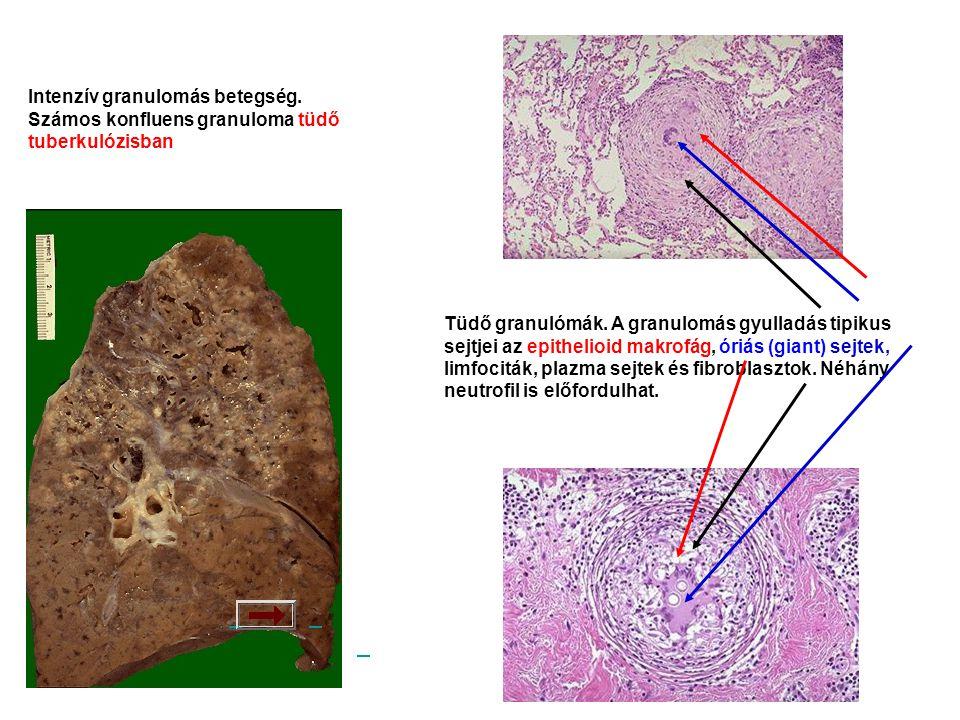 Intenzív granulomás betegség