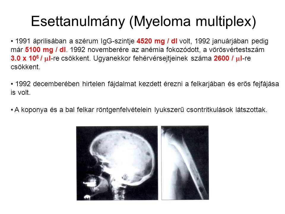 Esettanulmány (Myeloma multiplex)