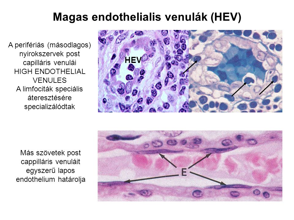 Magas endothelialis venulák (HEV)