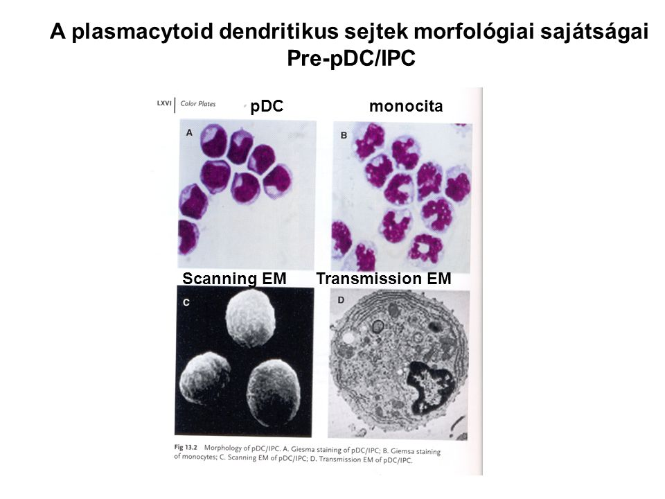 A plasmacytoid dendritikus sejtek morfológiai sajátságai