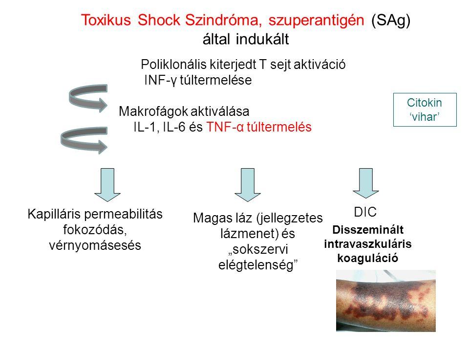 Toxikus Shock Szindróma, szuperantigén (SAg) által indukált