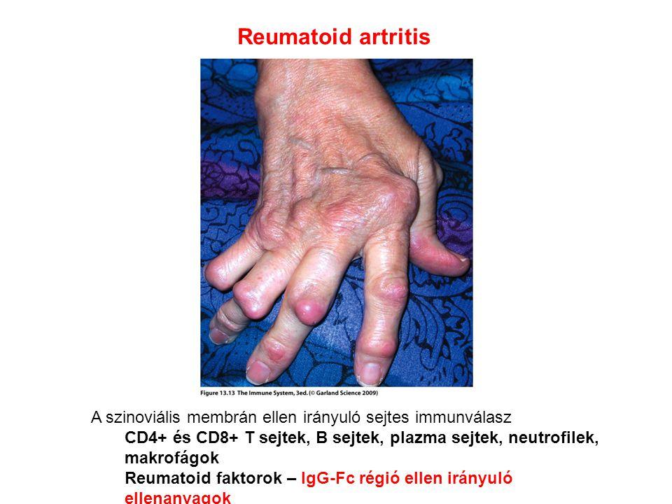 Reumatoid artritis A szinoviális membrán ellen irányuló sejtes immunválasz. CD4+ és CD8+ T sejtek, B sejtek, plazma sejtek, neutrofilek, makrofágok.