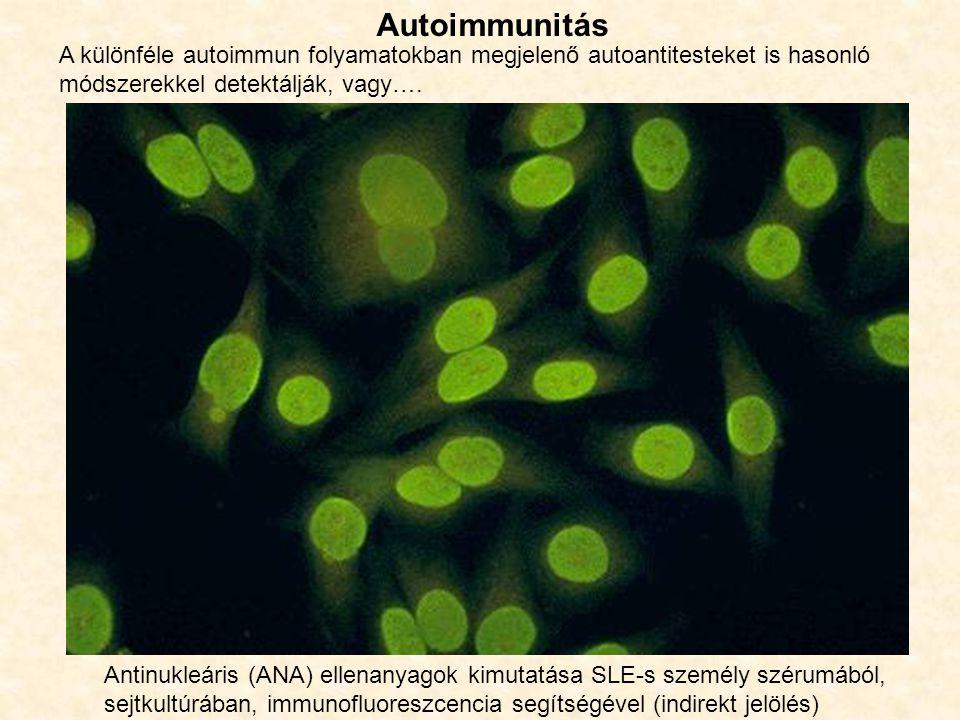 Autoimmunitás A különféle autoimmun folyamatokban megjelenő autoantitesteket is hasonló módszerekkel detektálják, vagy….