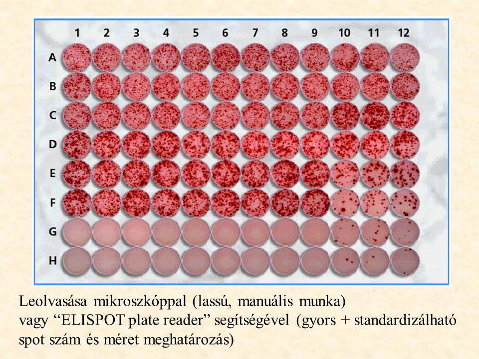 Leolvasása mikroszkóppal (lassú, manuális munka)