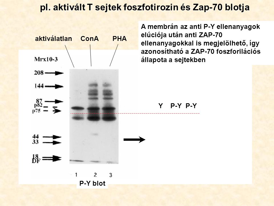 pl. aktivált T sejtek foszfotirozin és Zap-70 blotja