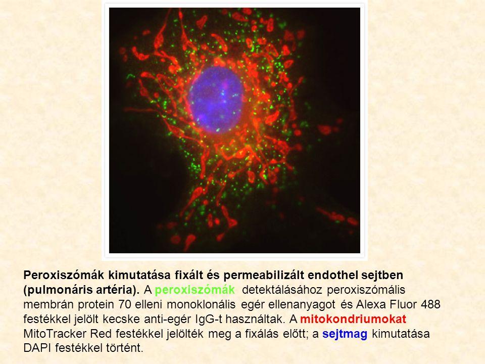 Peroxiszómák kimutatása fixált és permeabilizált endothel sejtben