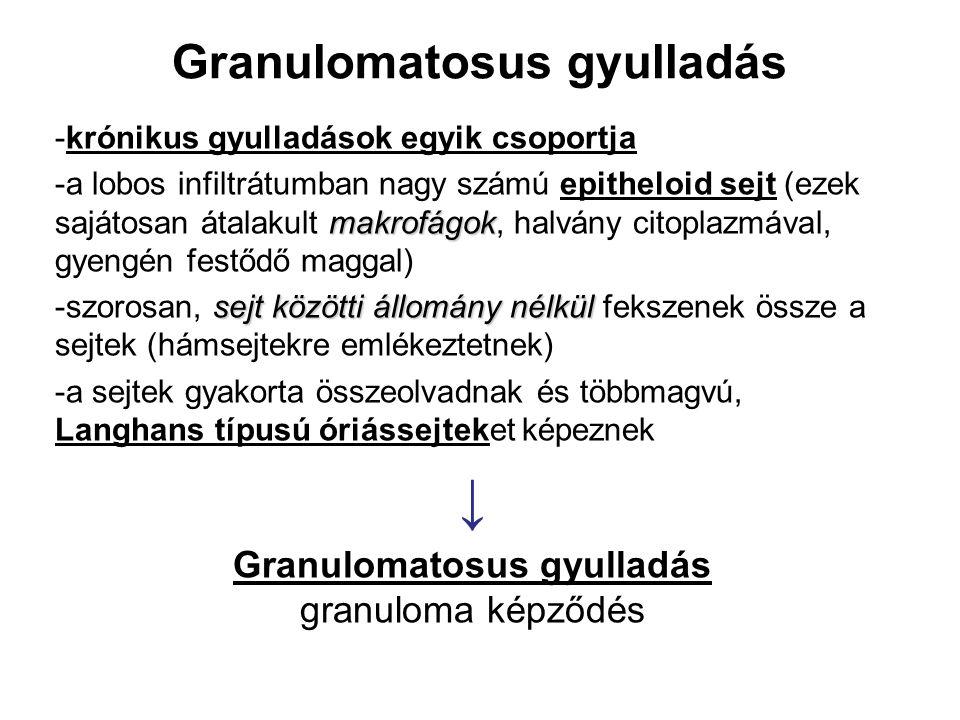 Granulomatosus gyulladás