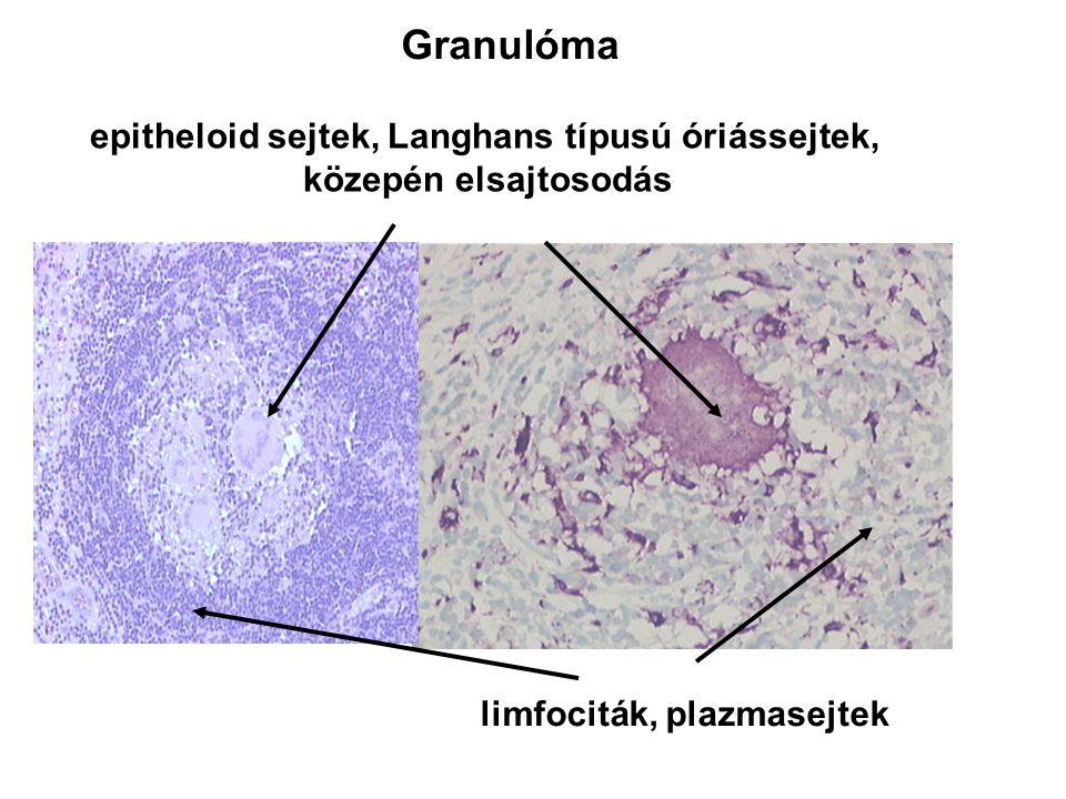epitheloid sejtek, Langhans típusú óriássejtek,