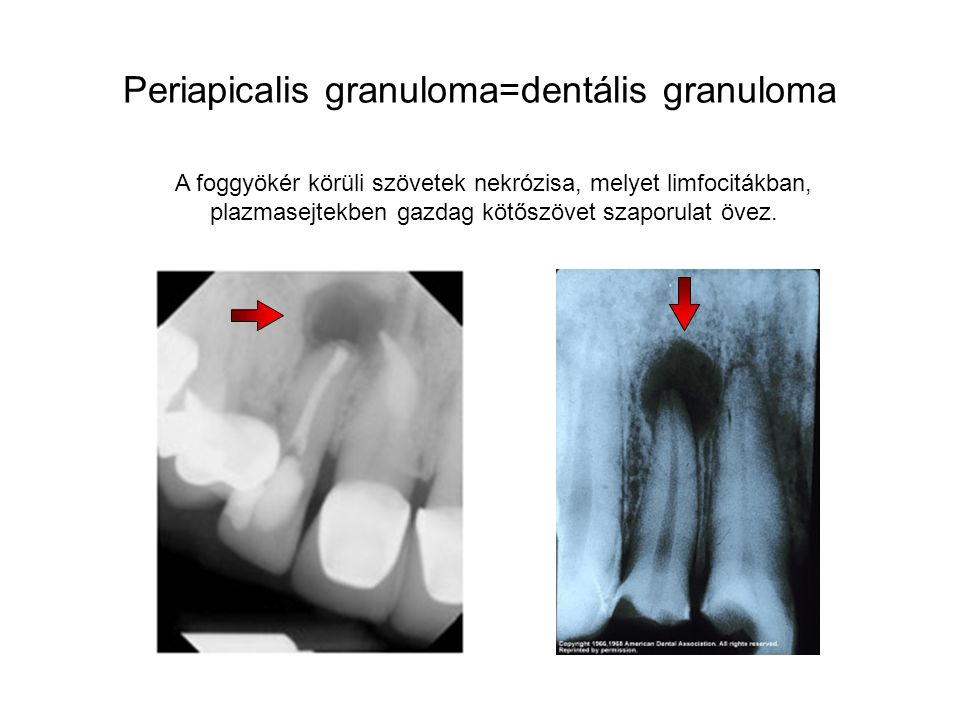 Periapicalis granuloma=dentális granuloma