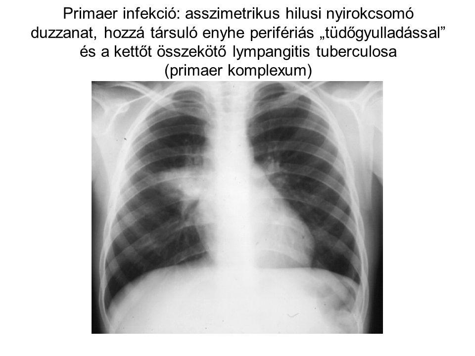 """Primaer infekció: asszimetrikus hilusi nyirokcsomó duzzanat, hozzá társuló enyhe perifériás """"tüdőgyulladással és a kettőt összekötő lympangitis tuberculosa (primaer komplexum)"""