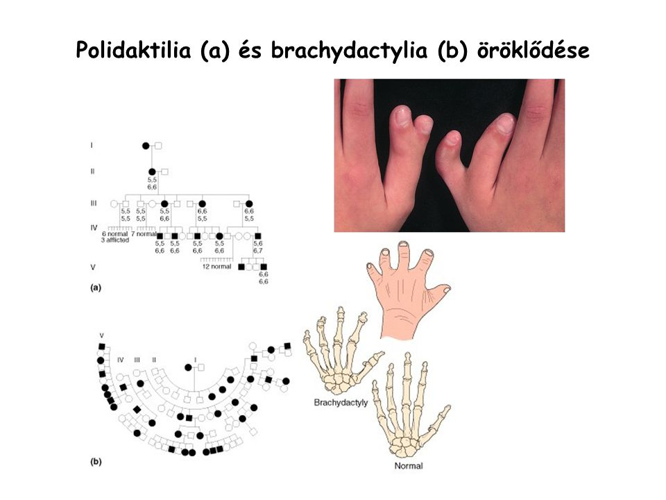 Polidaktilia (a) és brachydactylia (b) öröklődése