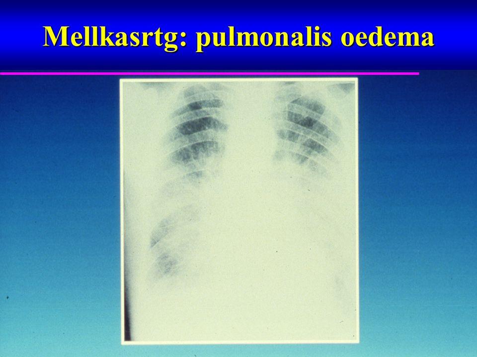 Mellkasrtg: pulmonalis oedema