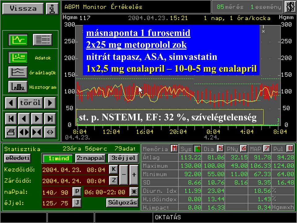 másnaponta 1 furosemid 2x25 mg metoprolol zok. nitrát tapasz, ASA, simvastatin. 1x2,5 mg enalapril – 10-0-5 mg enalapril.