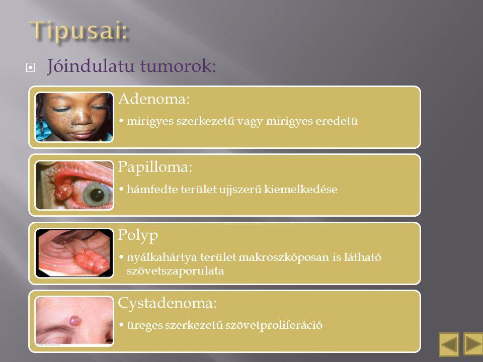 Tipusai: Jóindulatu tumorok: Adenoma: Papilloma: Polyp Cystadenoma: