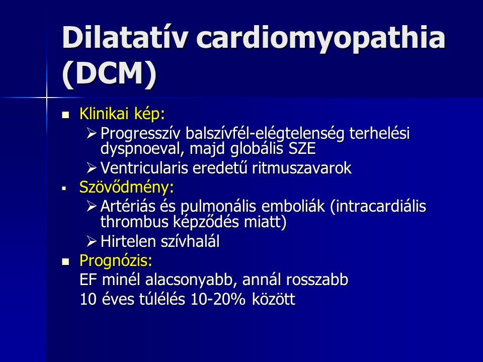Dilatatív cardiomyopathia (DCM)