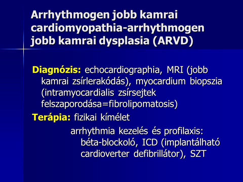 Arrhythmogen jobb kamrai cardiomyopathia-arrhythmogen jobb kamrai dysplasia (ARVD)