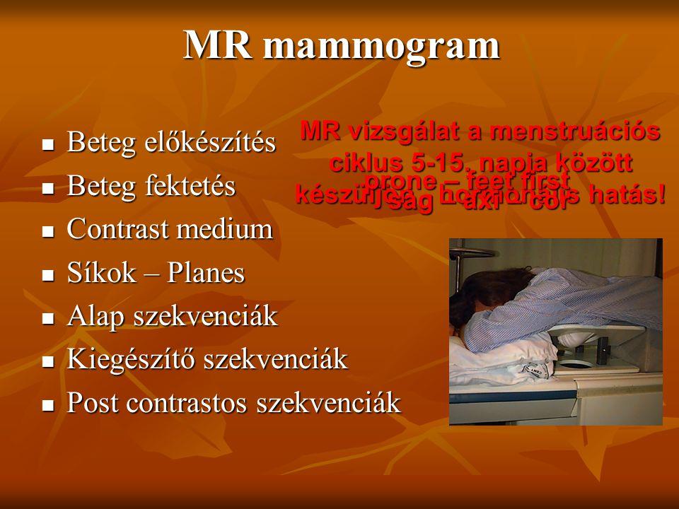 MR mammogram Beteg előkészítés Beteg fektetés Contrast medium