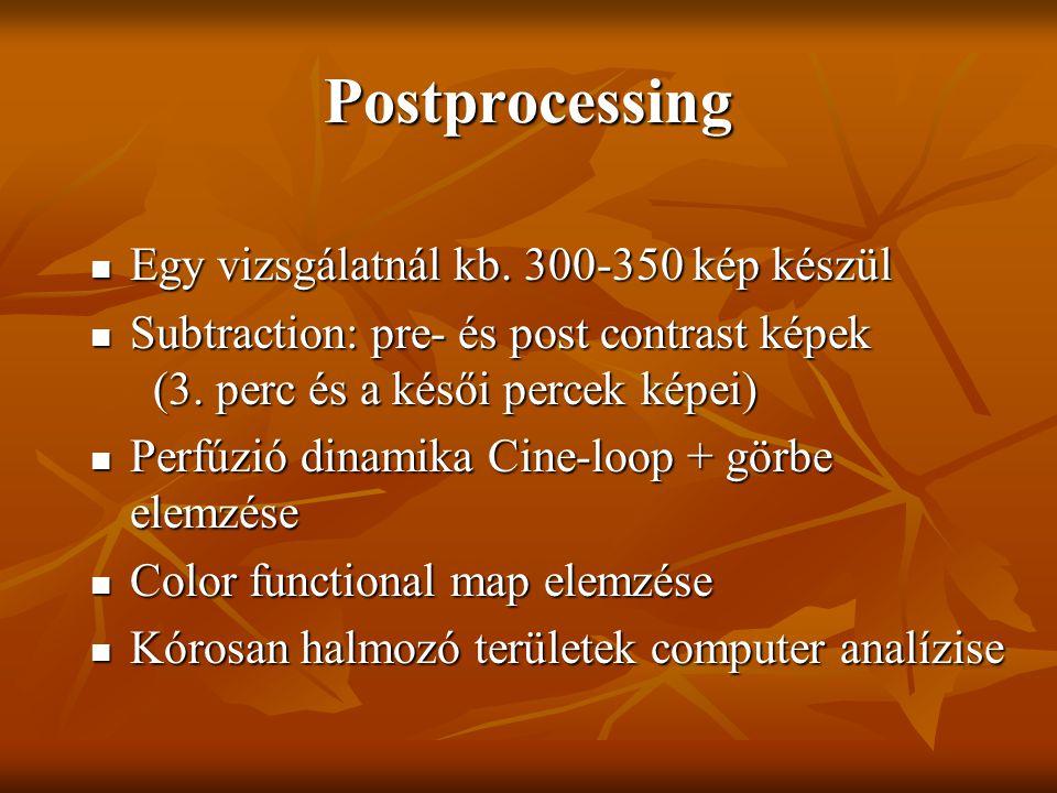 Postprocessing Egy vizsgálatnál kb. 300-350 kép készül