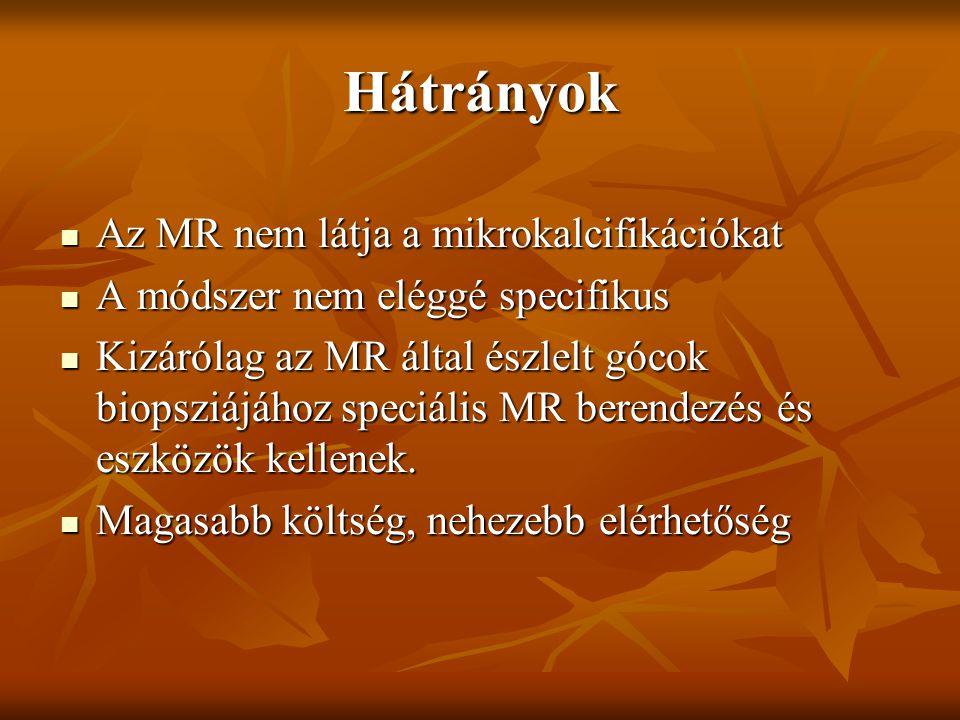 Hátrányok Az MR nem látja a mikrokalcifikációkat