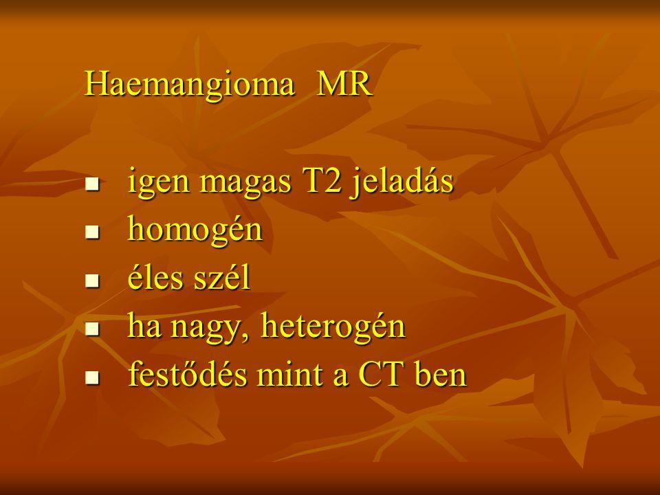 Haemangioma MR igen magas T2 jeladás homogén éles szél ha nagy, heterogén festődés mint a CT ben