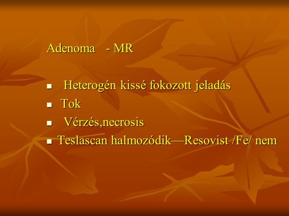 Adenoma - MR Heterogén kissé fokozott jeladás. Tok.