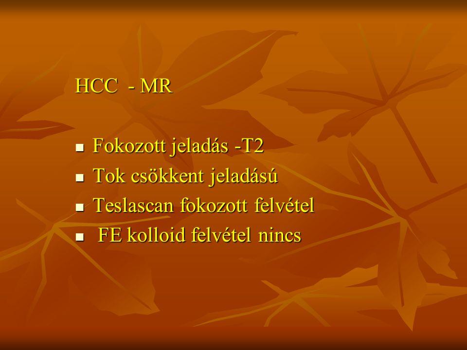 HCC - MR Fokozott jeladás -T2. Tok csökkent jeladású.