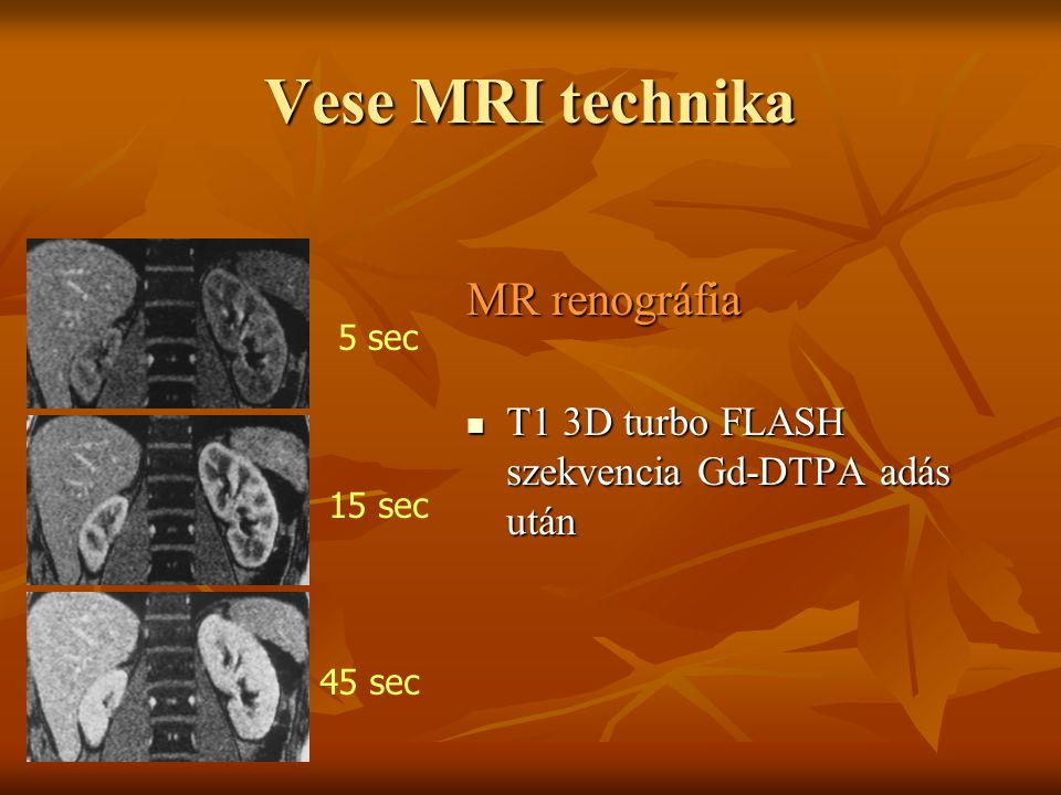 Vese MRI technika MR renográfia