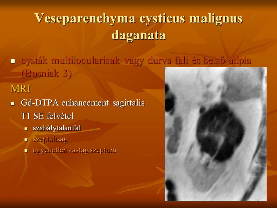 Veseparenchyma cysticus malignus daganata