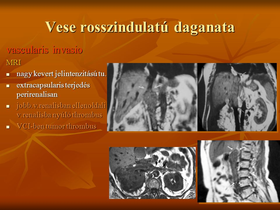 Vese rosszindulatú daganata