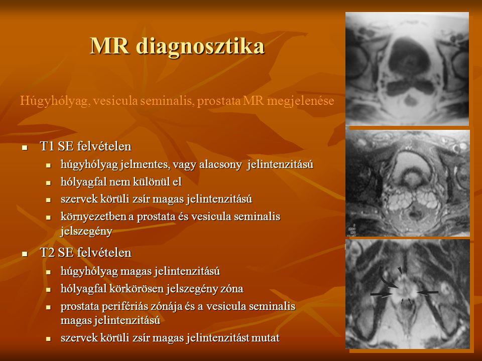 MR diagnosztika Húgyhólyag, vesicula seminalis, prostata MR megjelenése. i. T1 SE felvételen. húgyhólyag jelmentes, vagy alacsony jelintenzitású.