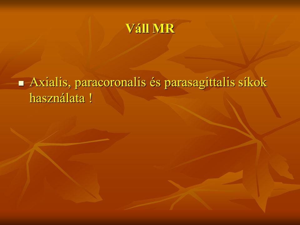 Váll MR Axialis, paracoronalis és parasagittalis síkok használata !