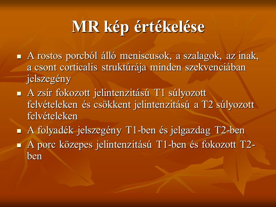 MR kép értékelése A rostos porcból álló meniscusok, a szalagok, az inak, a csont corticalis struktúrája minden szekvenciában jelszegény.