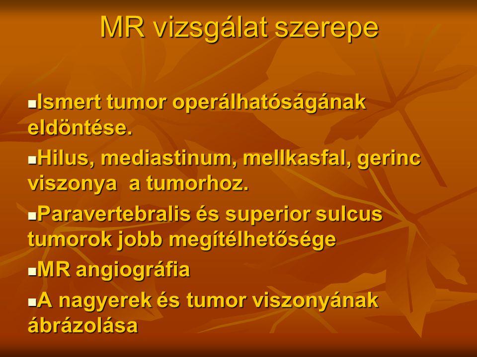 MR vizsgálat szerepe Ismert tumor operálhatóságának eldöntése.