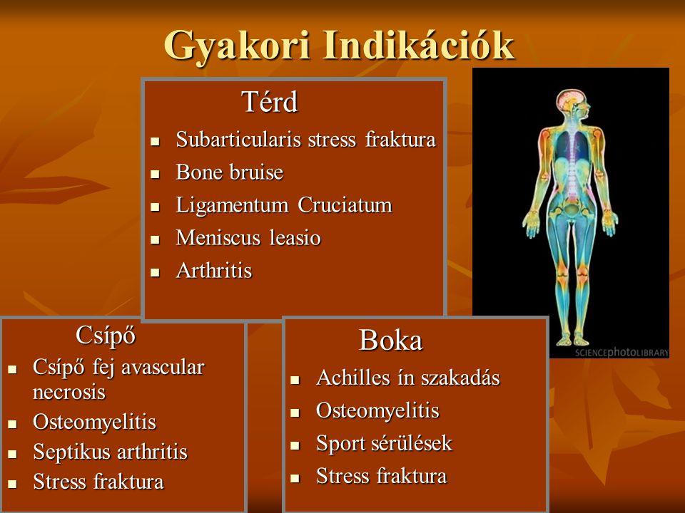 Gyakori Indikációk Térd Boka Csípő Subarticularis stress fraktura