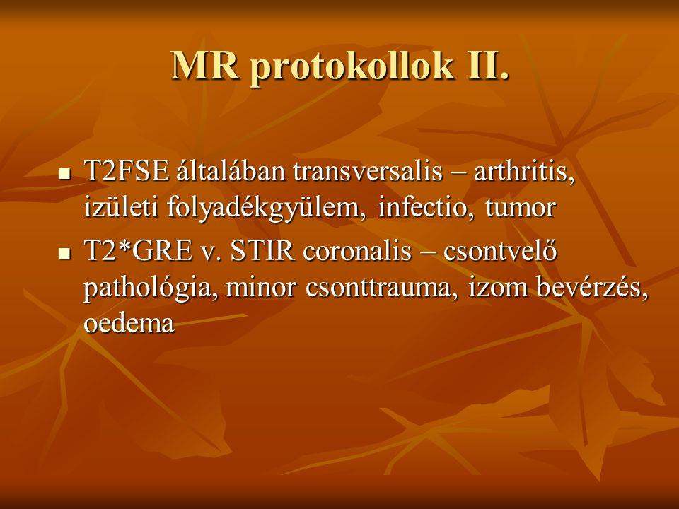 MR protokollok II. T2FSE általában transversalis – arthritis, izületi folyadékgyülem, infectio, tumor.