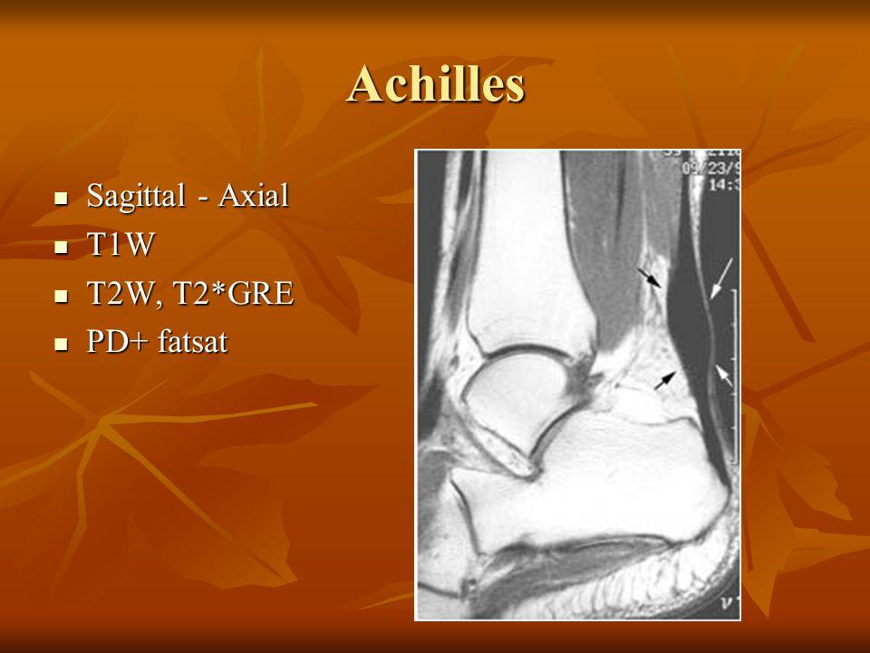 Achilles Sagittal - Axial T1W T2W, T2*GRE PD+ fatsat