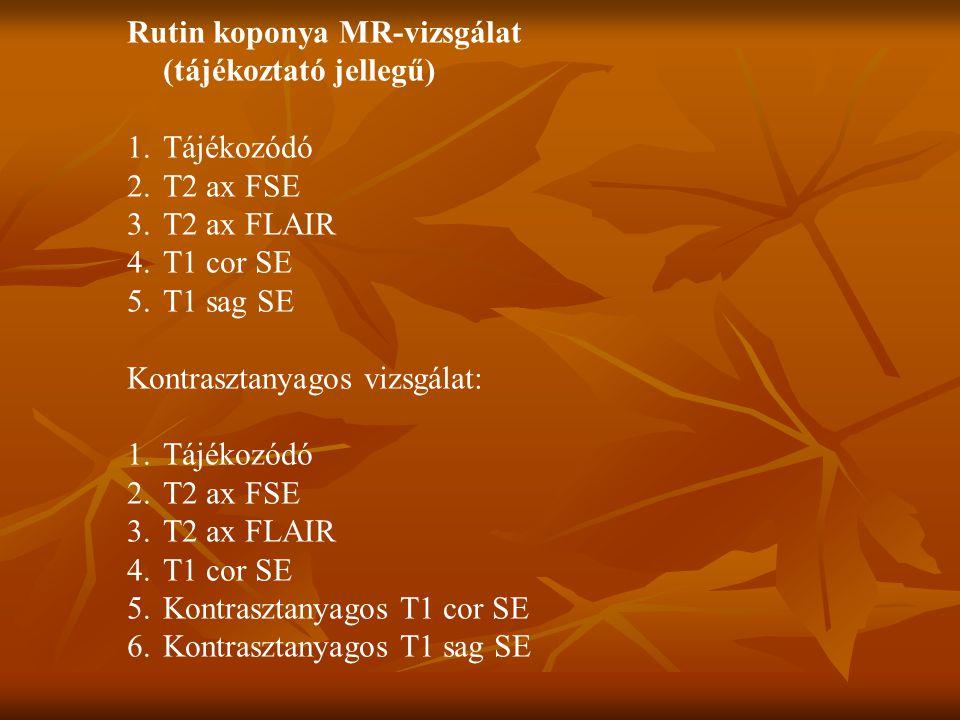 Rutin koponya MR-vizsgálat (tájékoztató jellegű)