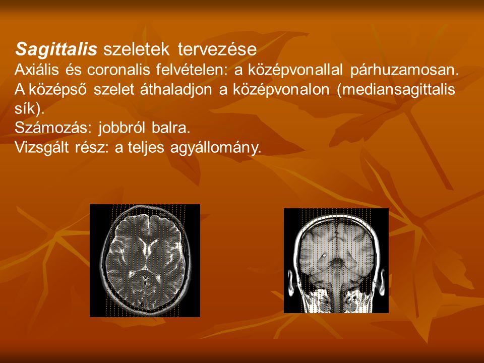 Axiális és coronalis felvételen: a középvonallal párhuzamosan.
